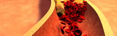 Hipercholesterolemia – wytyczne leczenia