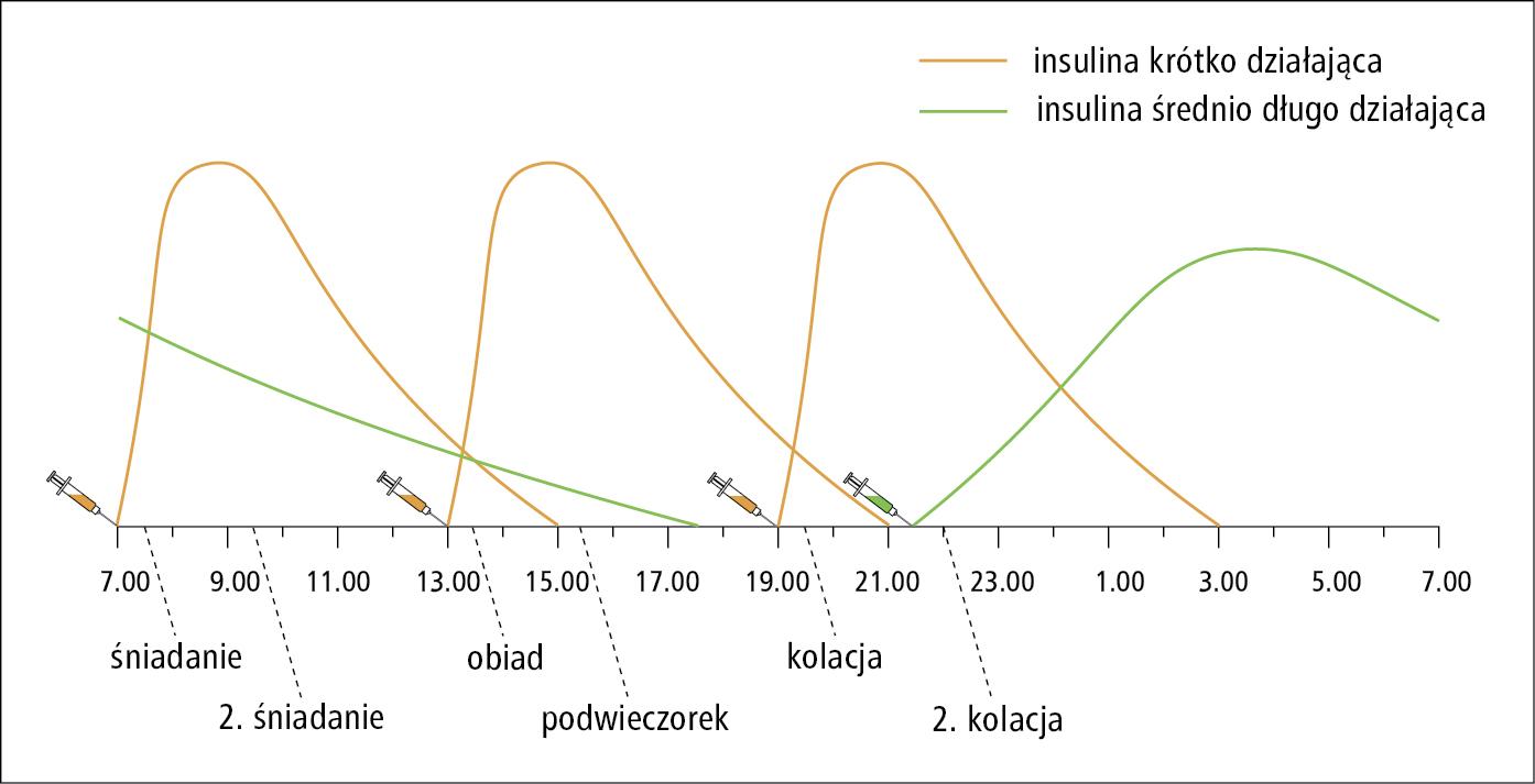 Intensywna insulinoterapia
