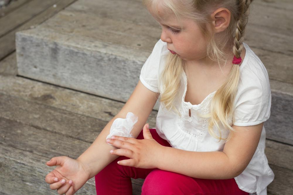 leczenie atopowego zapalenia skóry