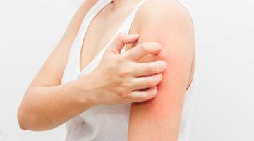 Jak rozpoznać Atopowe Zapalenie Skóry (AZS)? - wytyczne