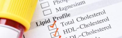 Lipidogram – co trzeba wiedzieć?