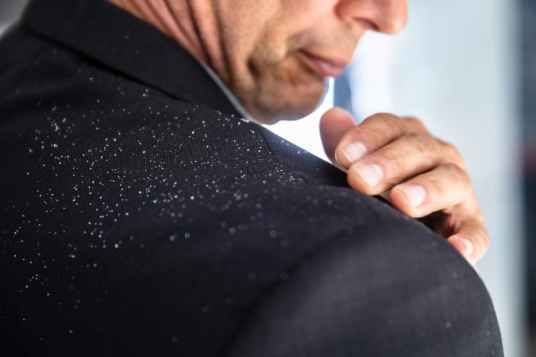 U osób cierpiących na łupież, upośledzony jest proces odnowy komórek naskórka (fot. Shutterstock).