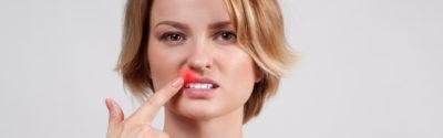 Opryszczka wargowa – pigułka wiedzy dla farmaceuty