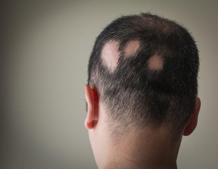 Łysienie plackowate często występuje jako choroba współistniejąca z innymi schorzeniami opodłożu autoimmunologicznym (fot. Shutterstock).